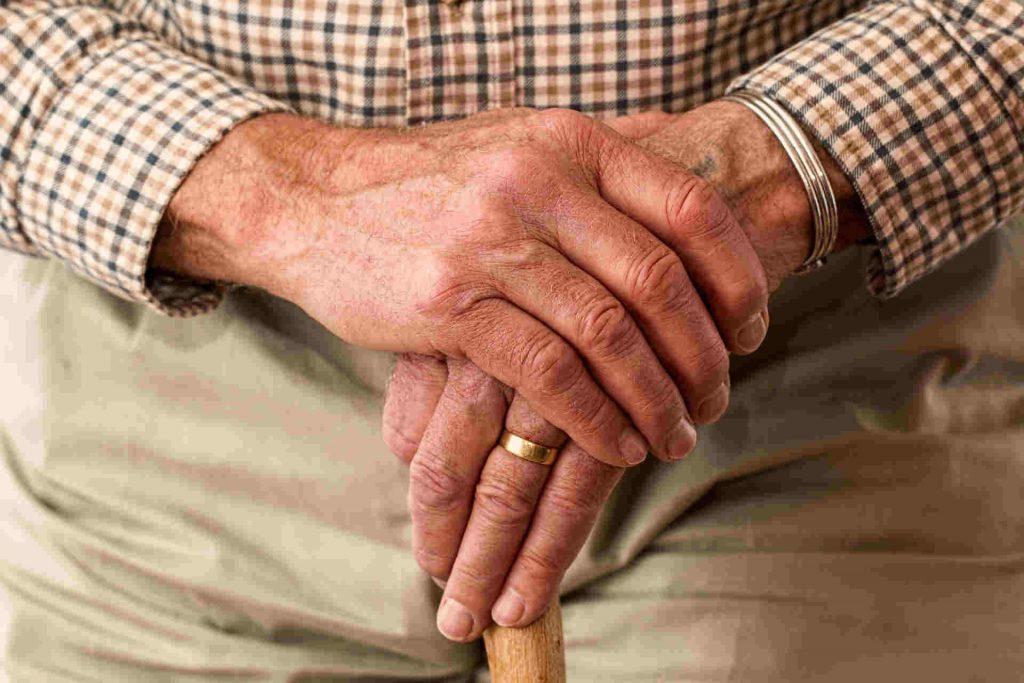 manos agrietadas y secas